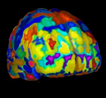 3D brain image 01 - BM&L collection