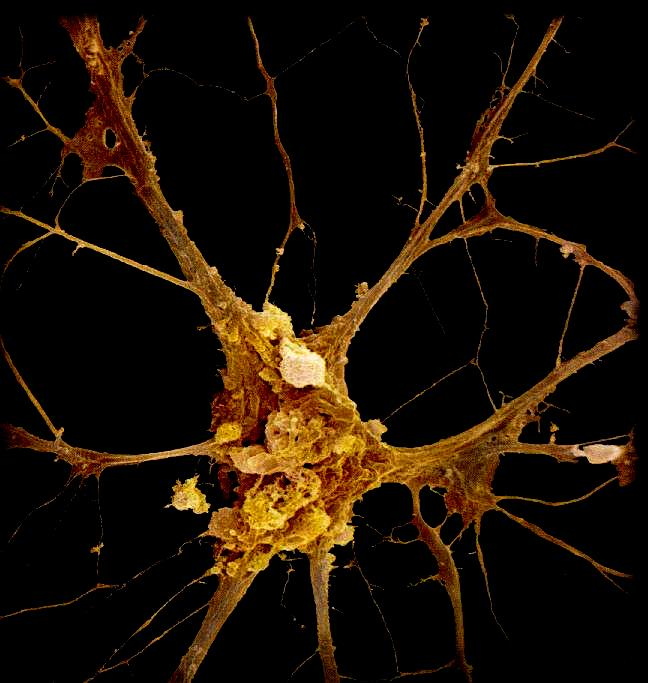 CENTER STAGE FOR NEURON - FROM THOUGHT TO NEUROPATHOLOGY